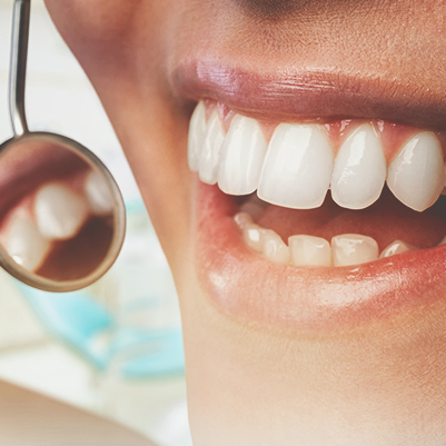 Resinas Compostas Anteriores. Transformando o sorriso com restaurações diretas.