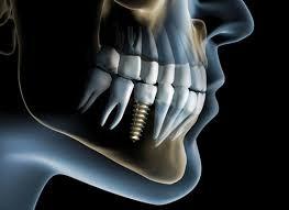 Capacitação Protético em Implantes Osseointegrados