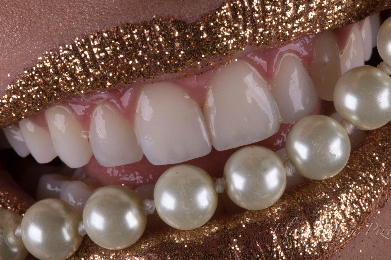 Estética e função na reabilitação direta de dentes anteriores