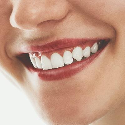Lapidando a beleza dos dentes naturais através de Resoluções minimamente invasivas: Clareamento, Microabrasão e Infiltrantes.