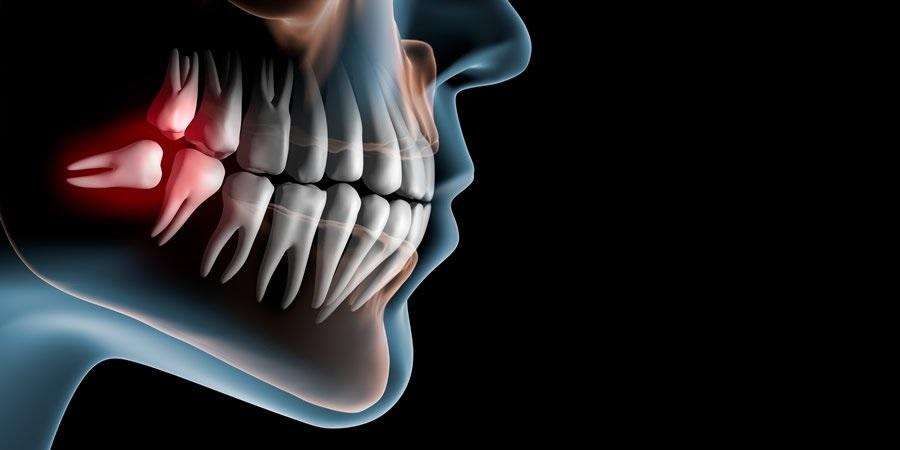 Capacitação em Cirurgia Buco Dentária