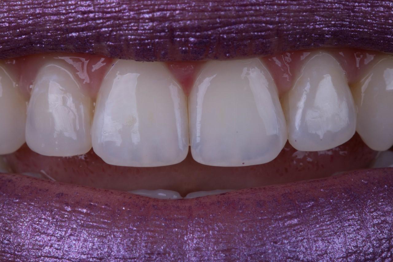 Atualização Master de Tópicos Especiais em Dentística
