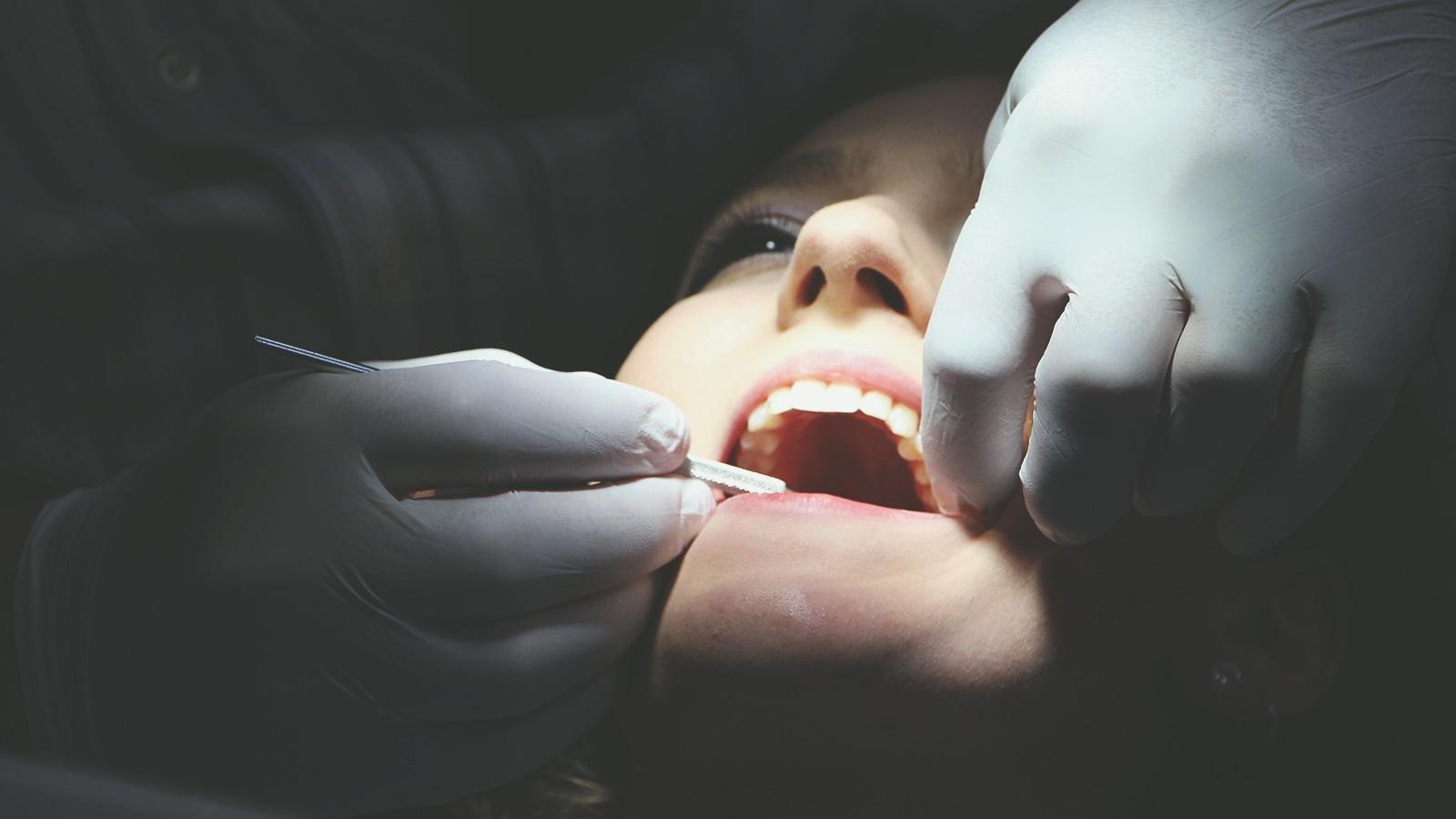 Capacitação Cirúrgico e Protético em Implantes Dentais Osseointegráveis - 2ª turma