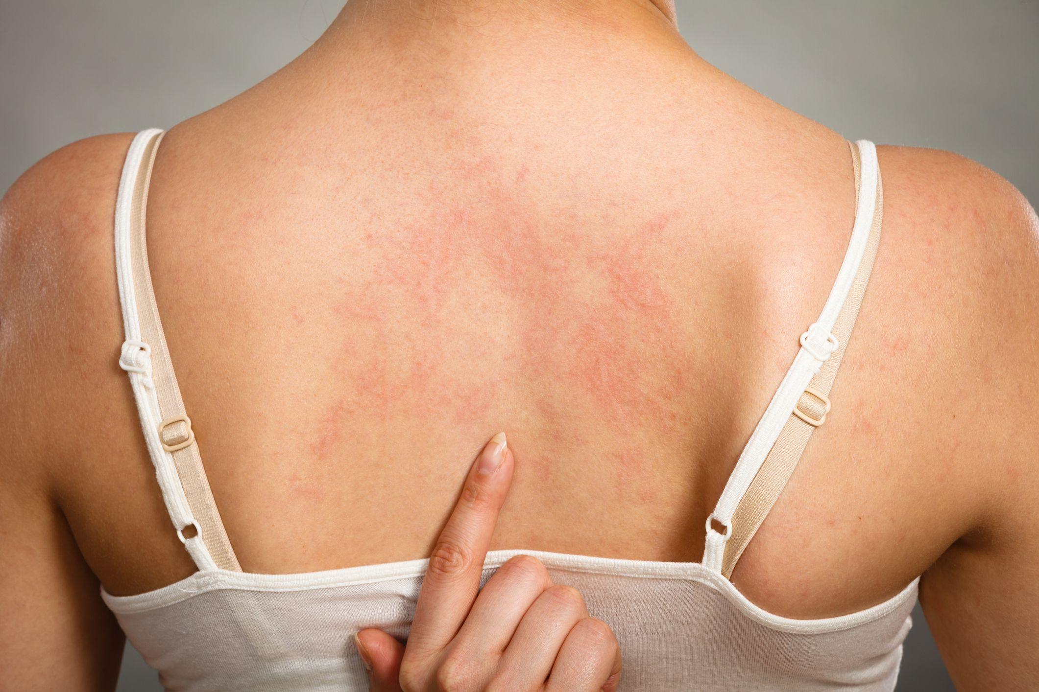 Dermatologia Clínica - Turma 3